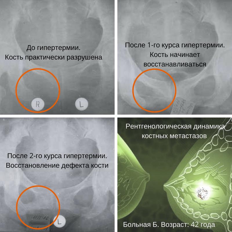 рак молочной железы с метастазами в кости