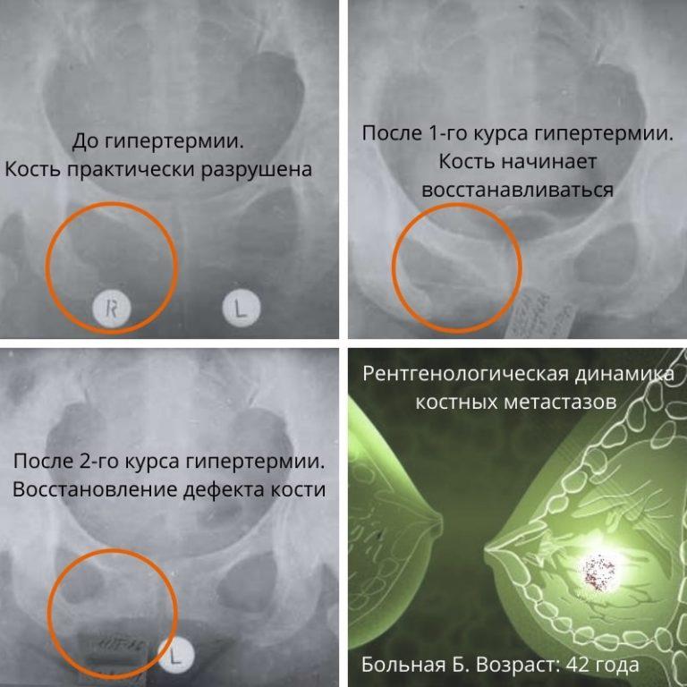 лечение метастазов в кости при раке молочной железы