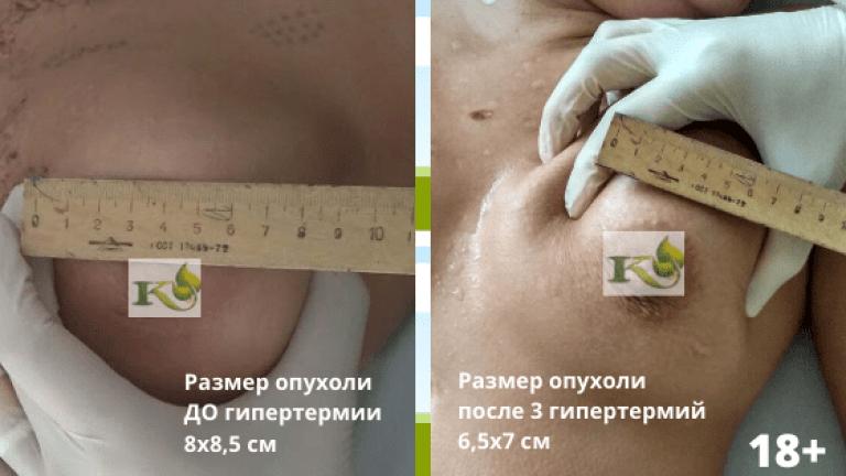 результат леченяи рака молочной железы
