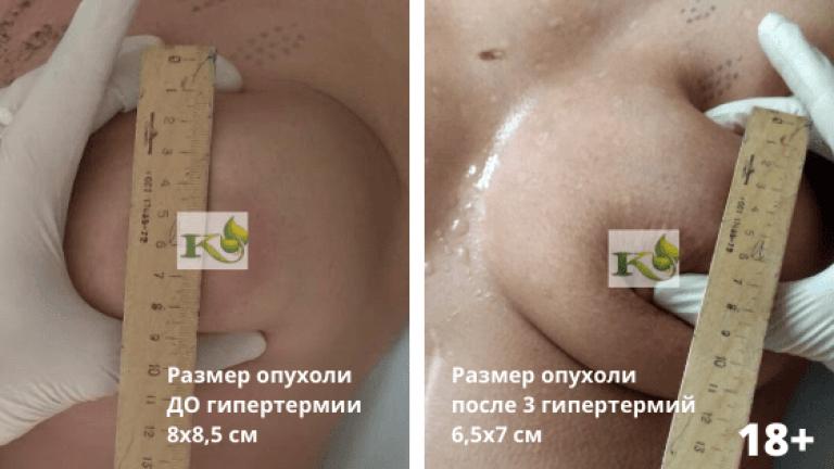 уменьшение опухоли молочной железы